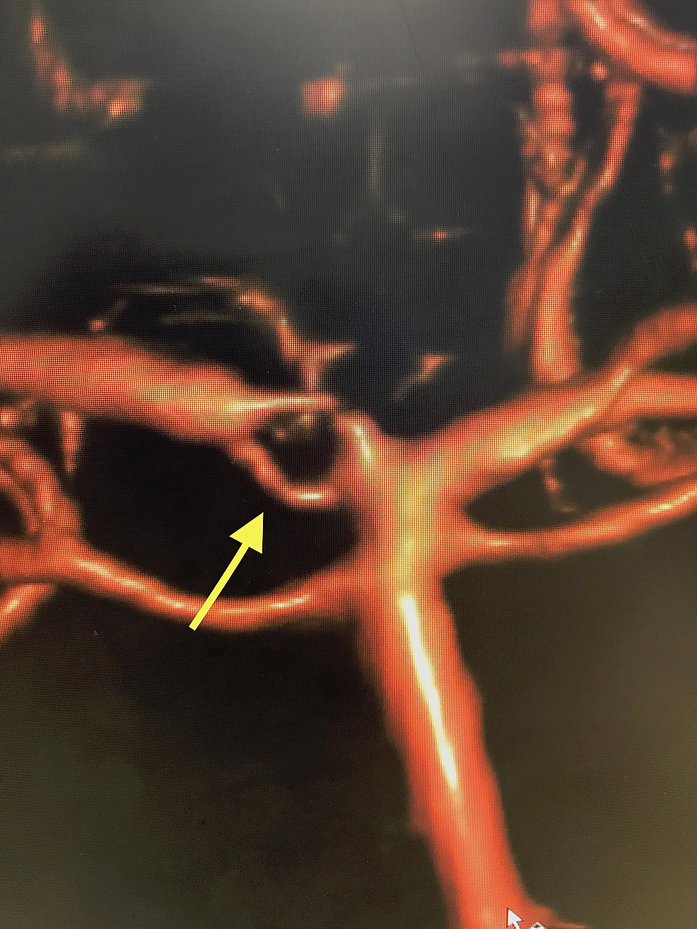 Here-we-see-a-bifurcation-of-the-basilar-artery-into-left-and-right-posterior-cerebral-arteries.-Note-the-fenestration-of-the-P1-segment-of-the-right-posterior-cerebral-artery-highlighted-by-the-yellow-arrow.