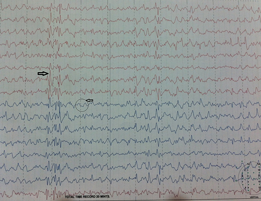 EEG-findings