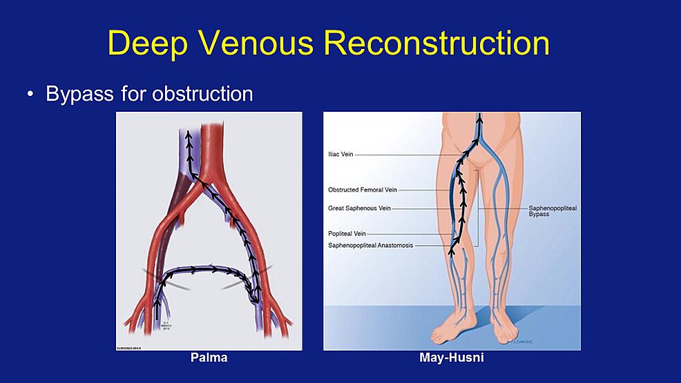 Cureus | Deep Venous Reconstruction: A Case Series