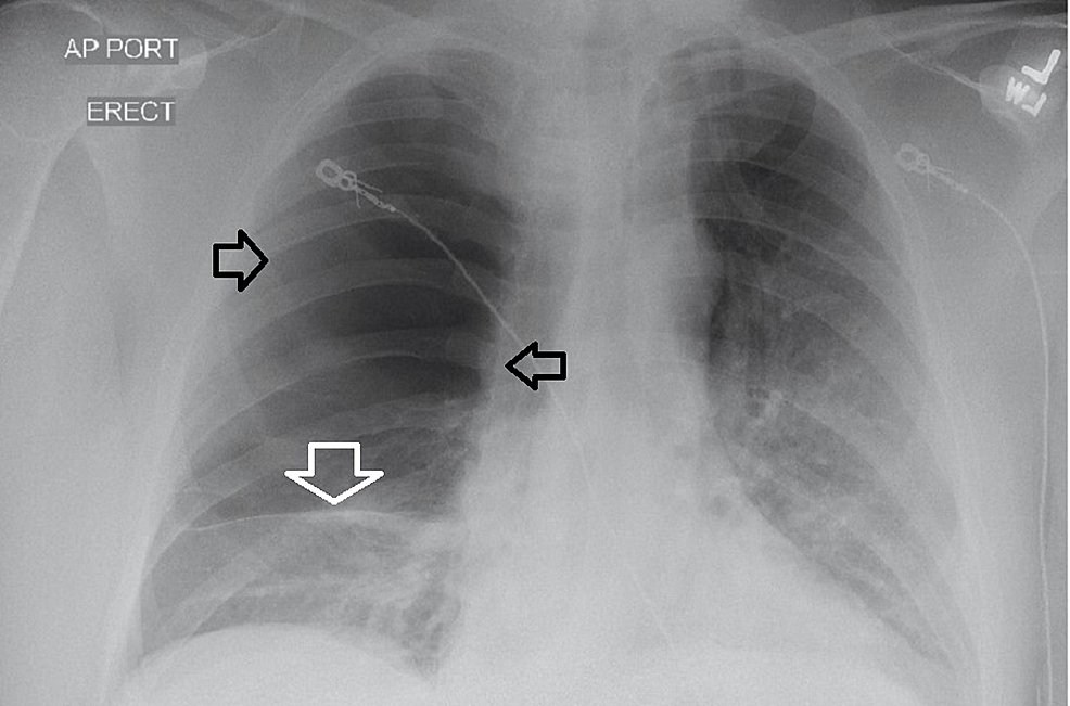 Chest-radiograph-on-admission.