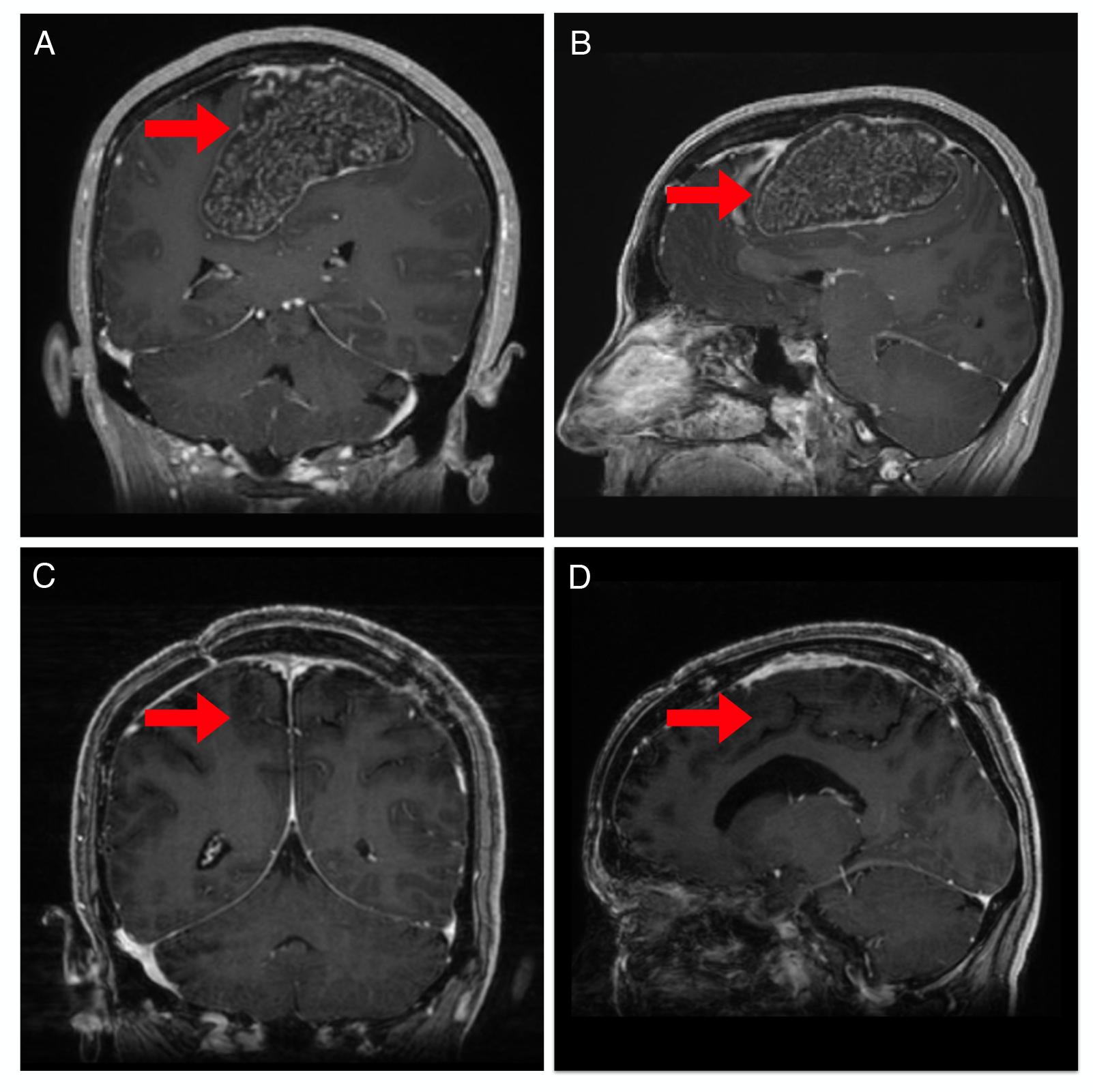 Pre-and-postoperative-magnetic-resonance-imaging-(MRI)