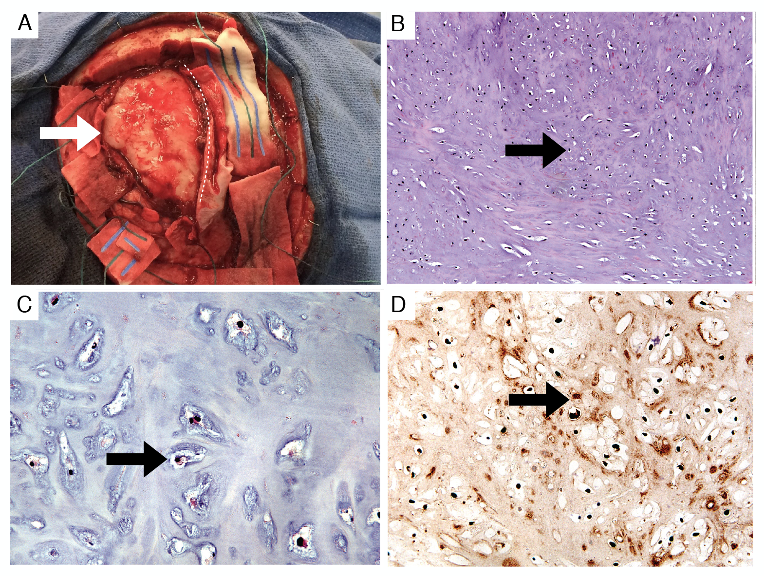 Gross-appearance-and-histology-of-the-tumor