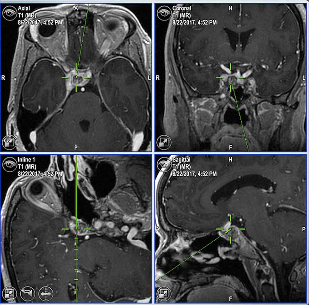 Neuronavigation-demonstrating-right-retrocarotid-clival-tumor-recurrence
