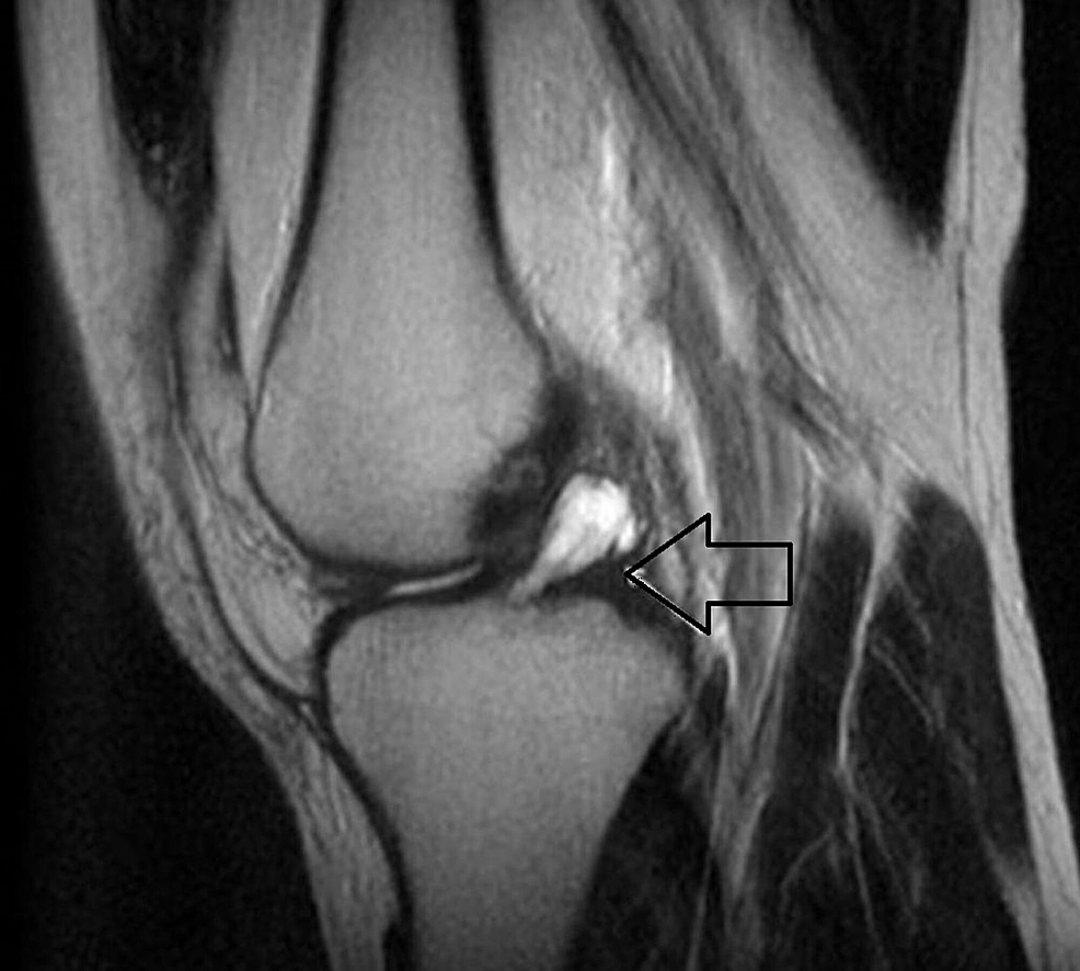 Sagittal-T2-weighted-magnetic-resonance-image-showing-fusiform-mass-(arrow)-that-is-almost-homogeneously-hyperintense-in-the-anterior-cruciate-ligament-(ACL).