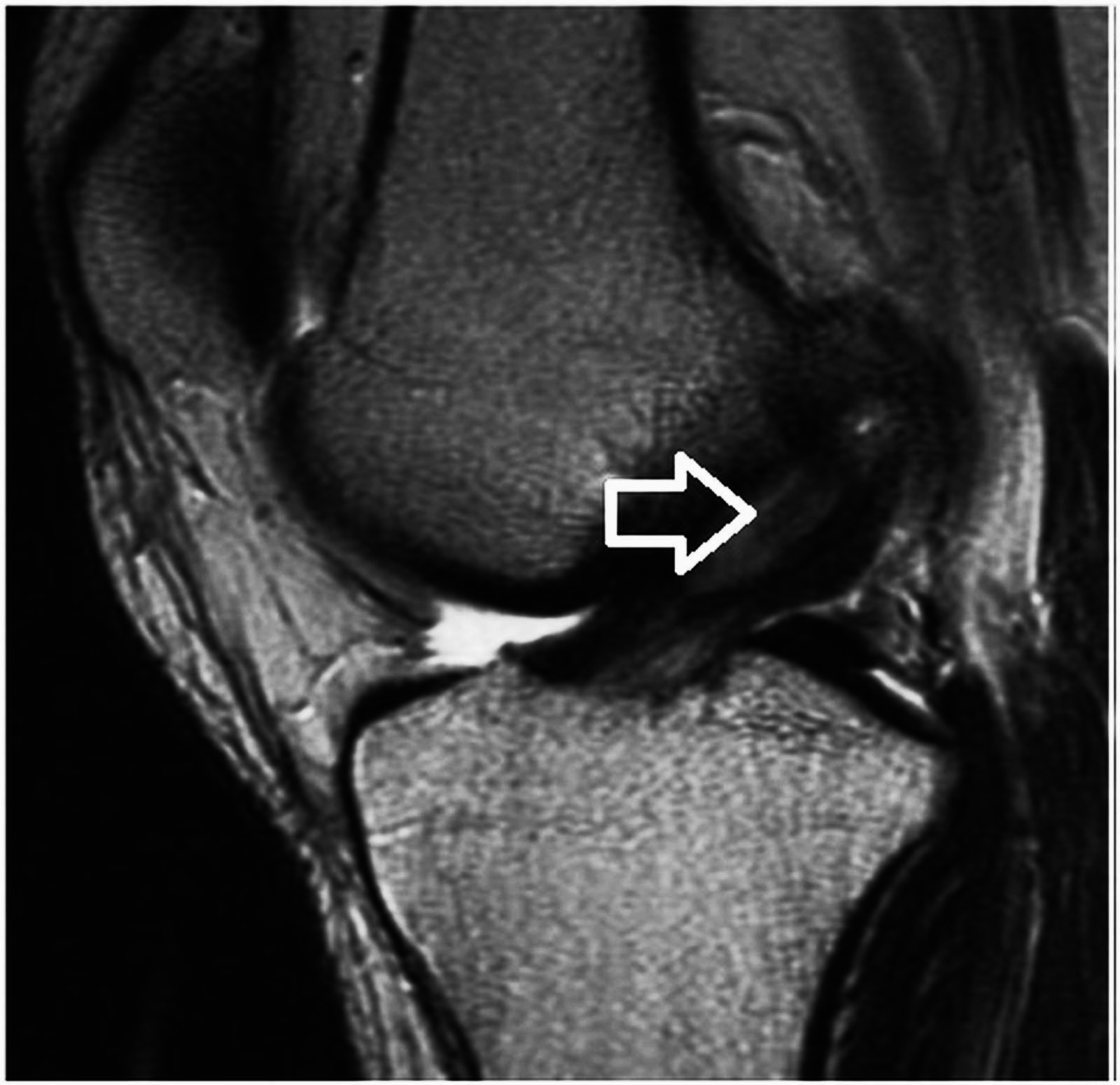 Cureus | Anterior Cruciate Ligament Ganglion Cyst and Mucoid