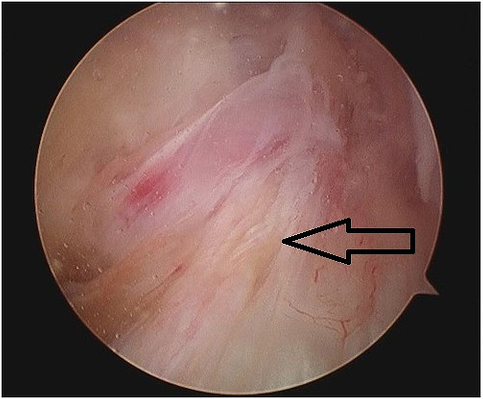 Intraoperative-arthroscopic-view-showing-ganglion-cyst-within-the-substance-of-ACL