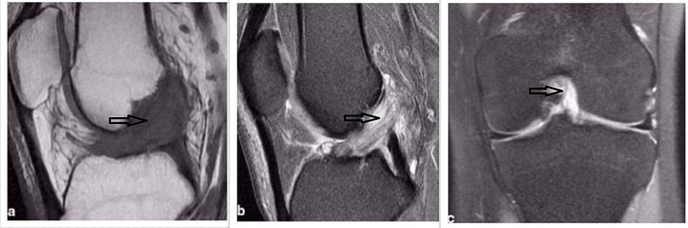 MRI-showing-ACL-mucoid-cyst-