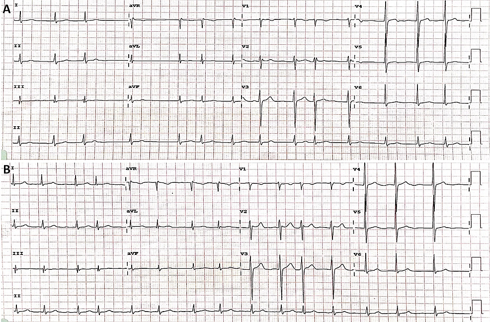 Electrocardiograms:-(A)-on-admission-and-(B)-3-hours-later,-showing-persistent-atrial-fibrillation.