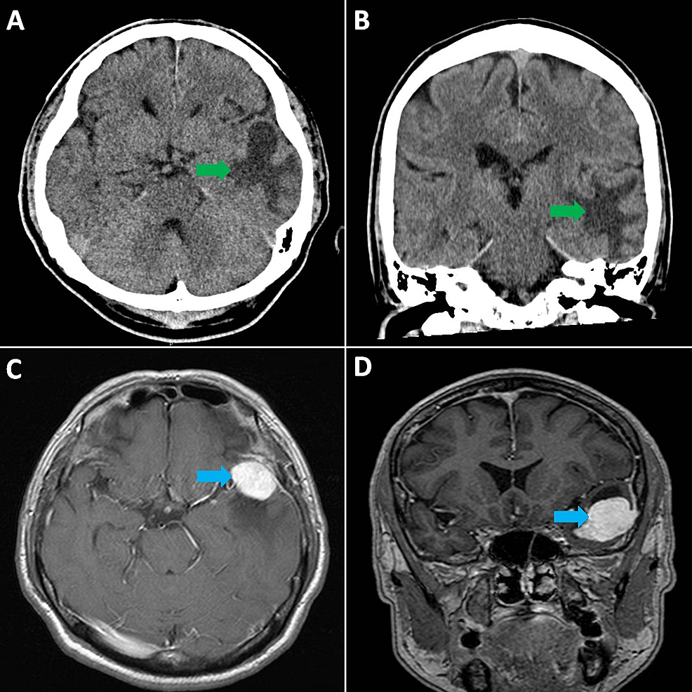 CT-scan-of-head:-axial-(A)-and-coronal-(B]-views,-showing-suspected-mass-lesion-(green-arrows)-in-the-left-temporal-lobe-with-surrounding-vasogenic-oedema-and-mass-effect;-MRI-of-brain:-axial-[C]-and-coronal-[D]-views,-showing-a-well-defined,-avidly-enhancing-extra-axial-mass-lesion-(blue-arrows)-in-the-left,-middle-cranial-fossa.