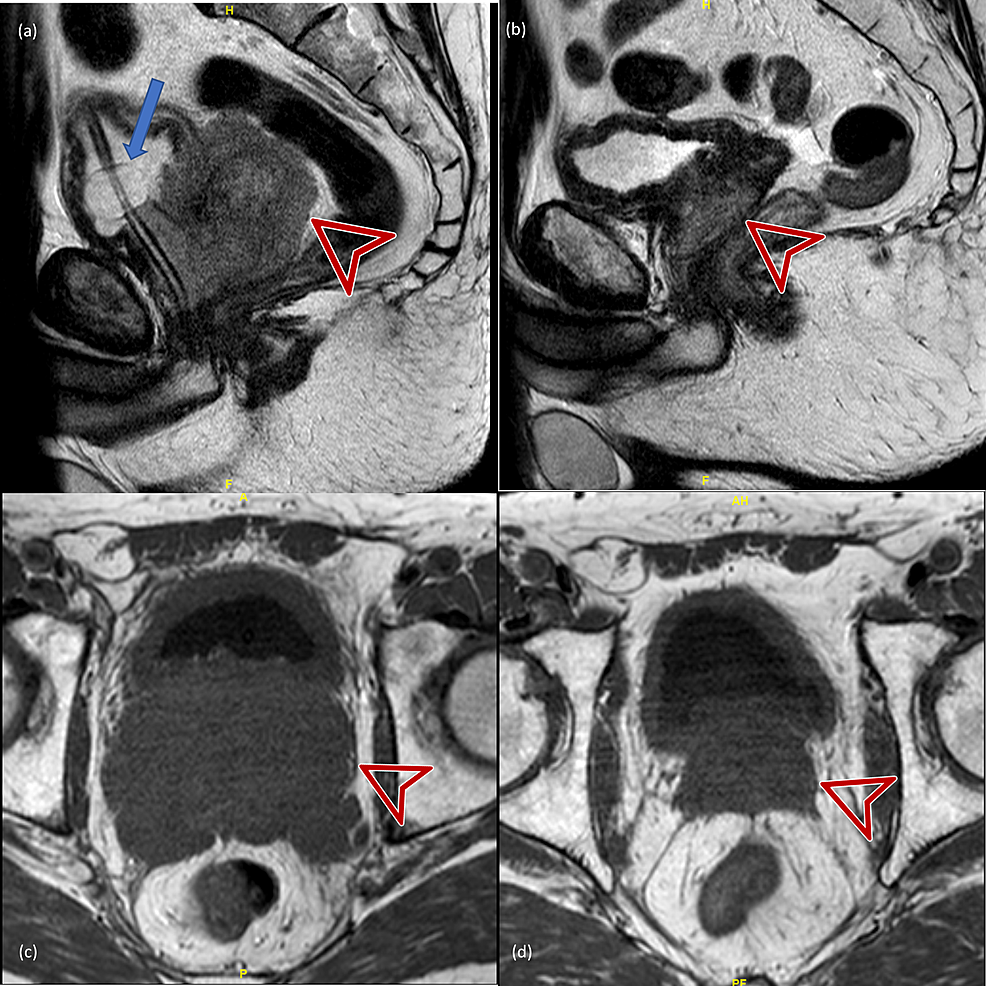 Pre-treatment-vs.-four-month-post-treatment-MRI-scans.