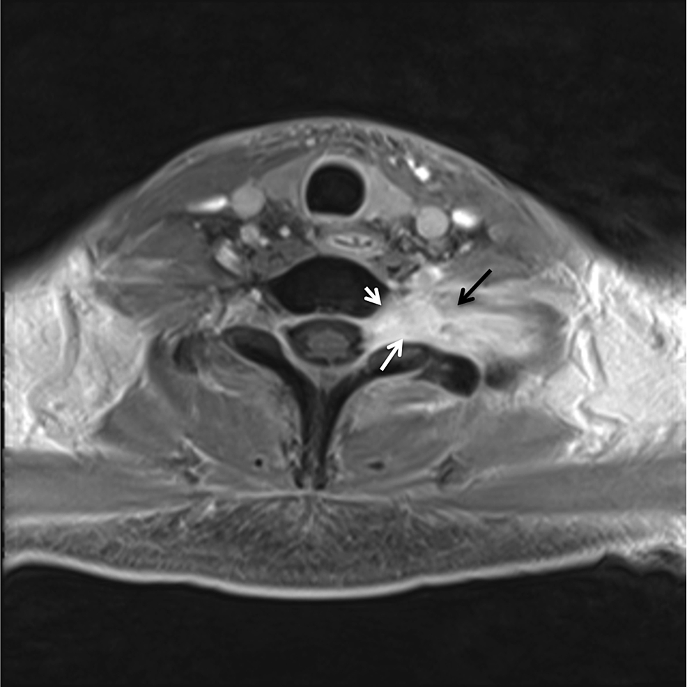 Axial-magnetic-resonance-imaging-(MRI)-of-patient-2.