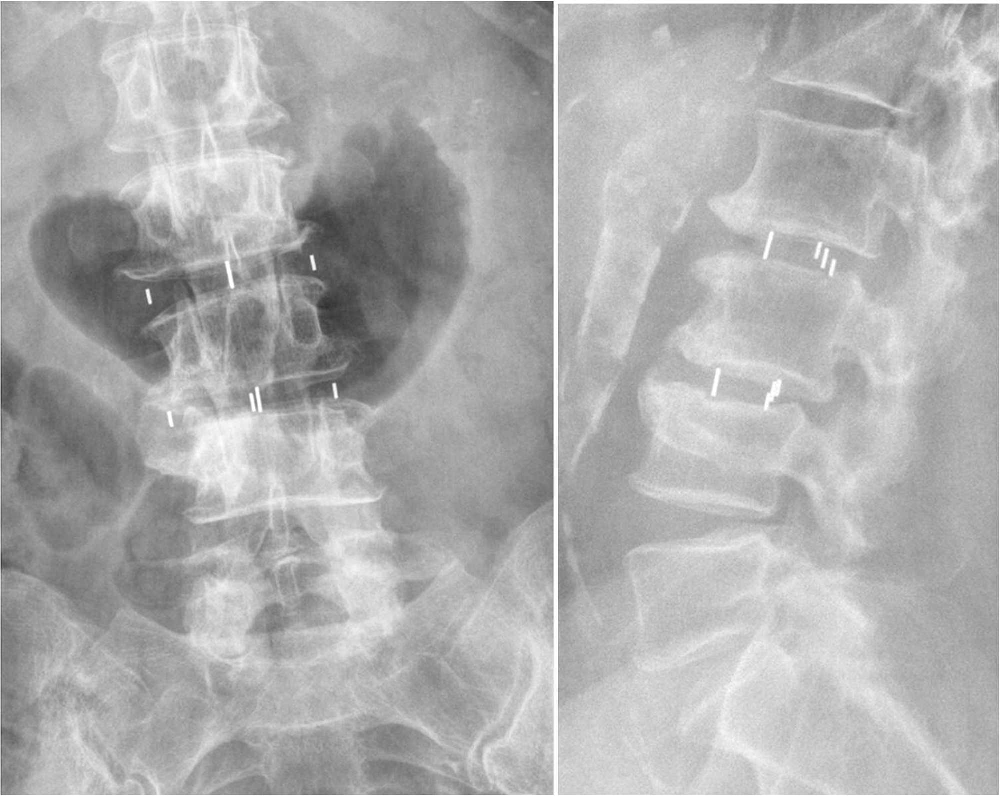 listhesis in Grade 1 spondylolisthesis, or a slipped disc, is a spinal condition that can be very painful when one vertebra slips forward over the other, the result is uncomfortable friction exacerbated by motion.