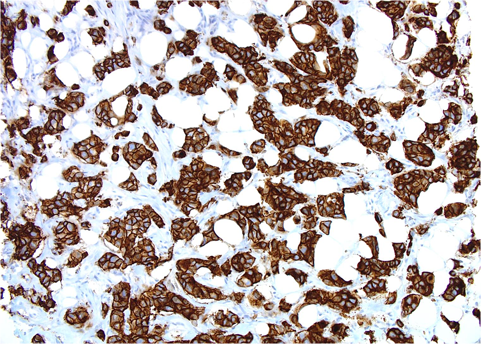 Patient-2:-Tumor-cells-show-strong-membranous-positivity-for-HER2-(score-3+)(20X)