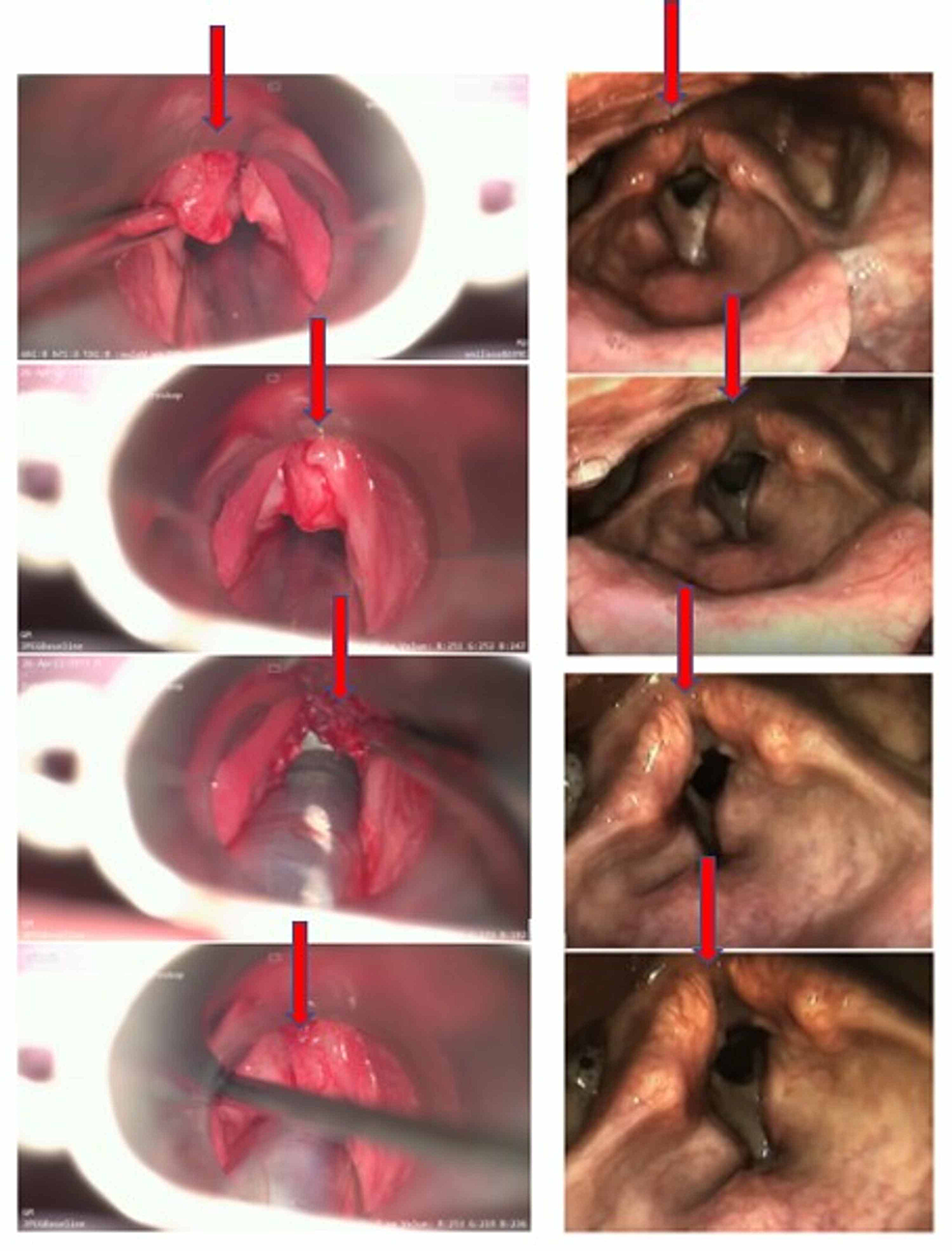 Comparative-pictures-taken-during-video-laryngoscopy-in-August-2017-versus-August-2020.