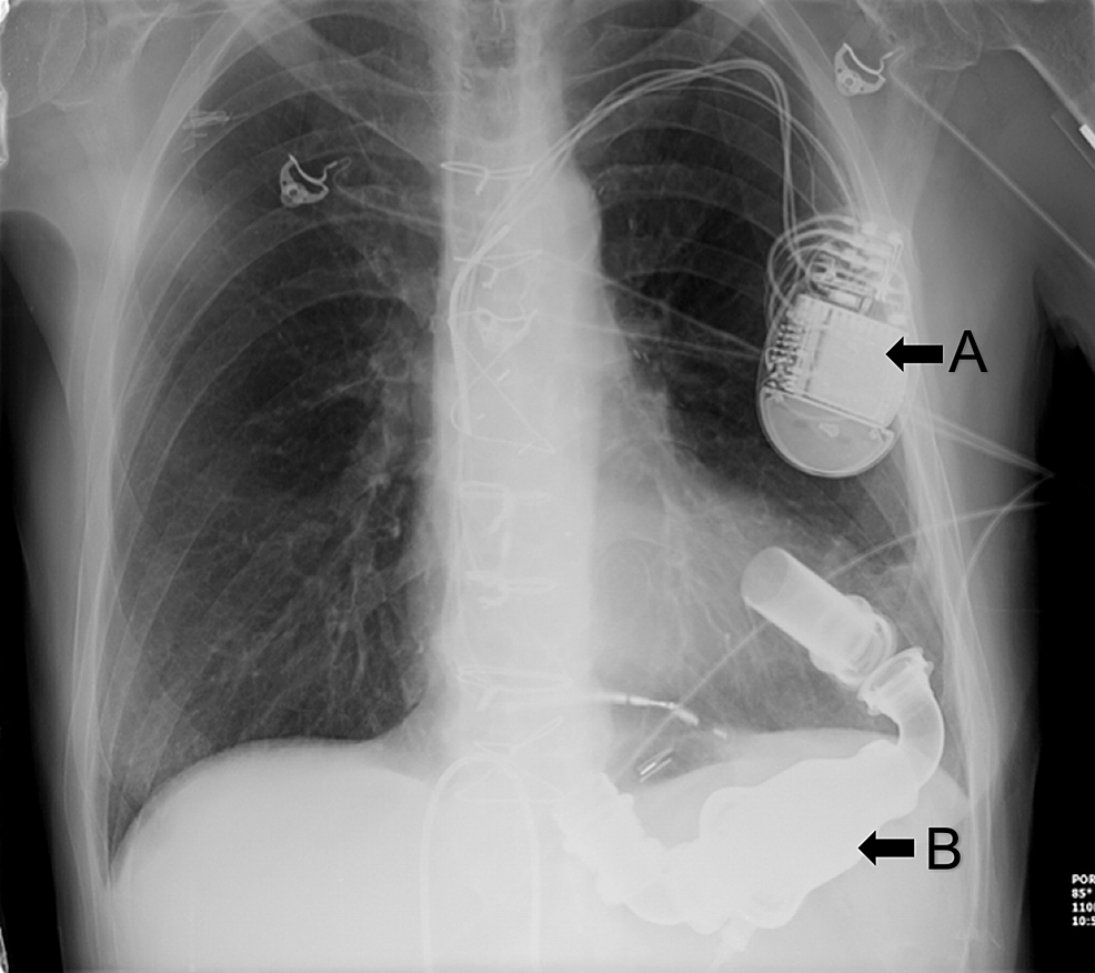 Chest-x-ray-showing-left-ventricular-assist-device-(LVAD)