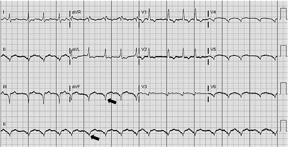 EKG-demonstrating-sinus-tachycardia-in-a-patient-with-a-left-ventricular-assist-device-(LVAD)