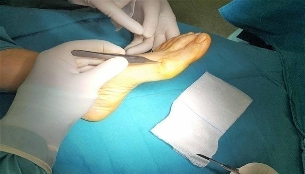 Medial-longitudinal-3-4-cm-skin-incision.-