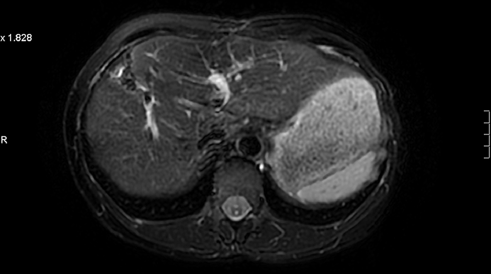 Patient-3:-Magnetic-resonance-imaging-(MRI)-liver-post-resection-demonstrates-no-evidence-of-recurrence