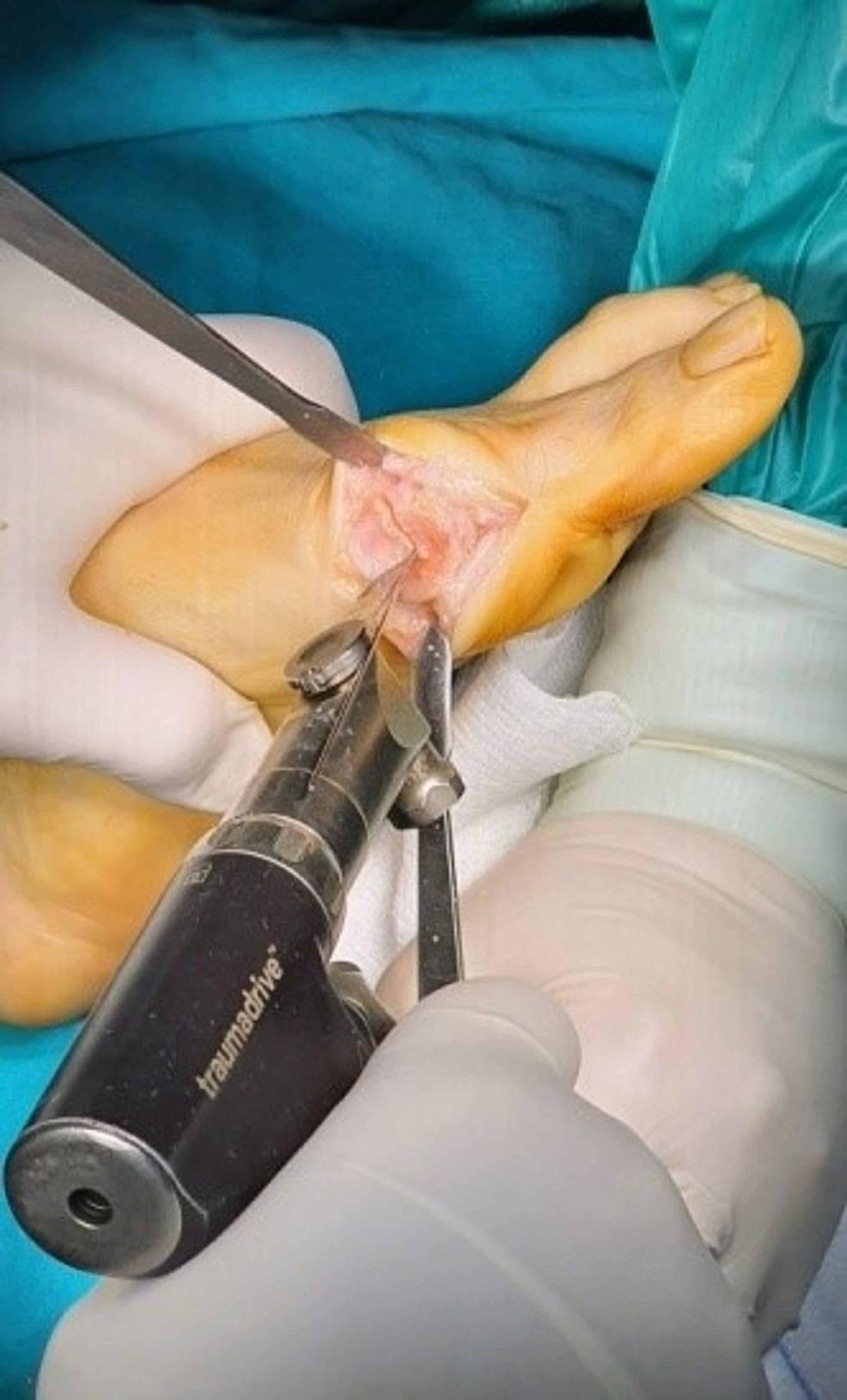 Second-plantar-osteotomy