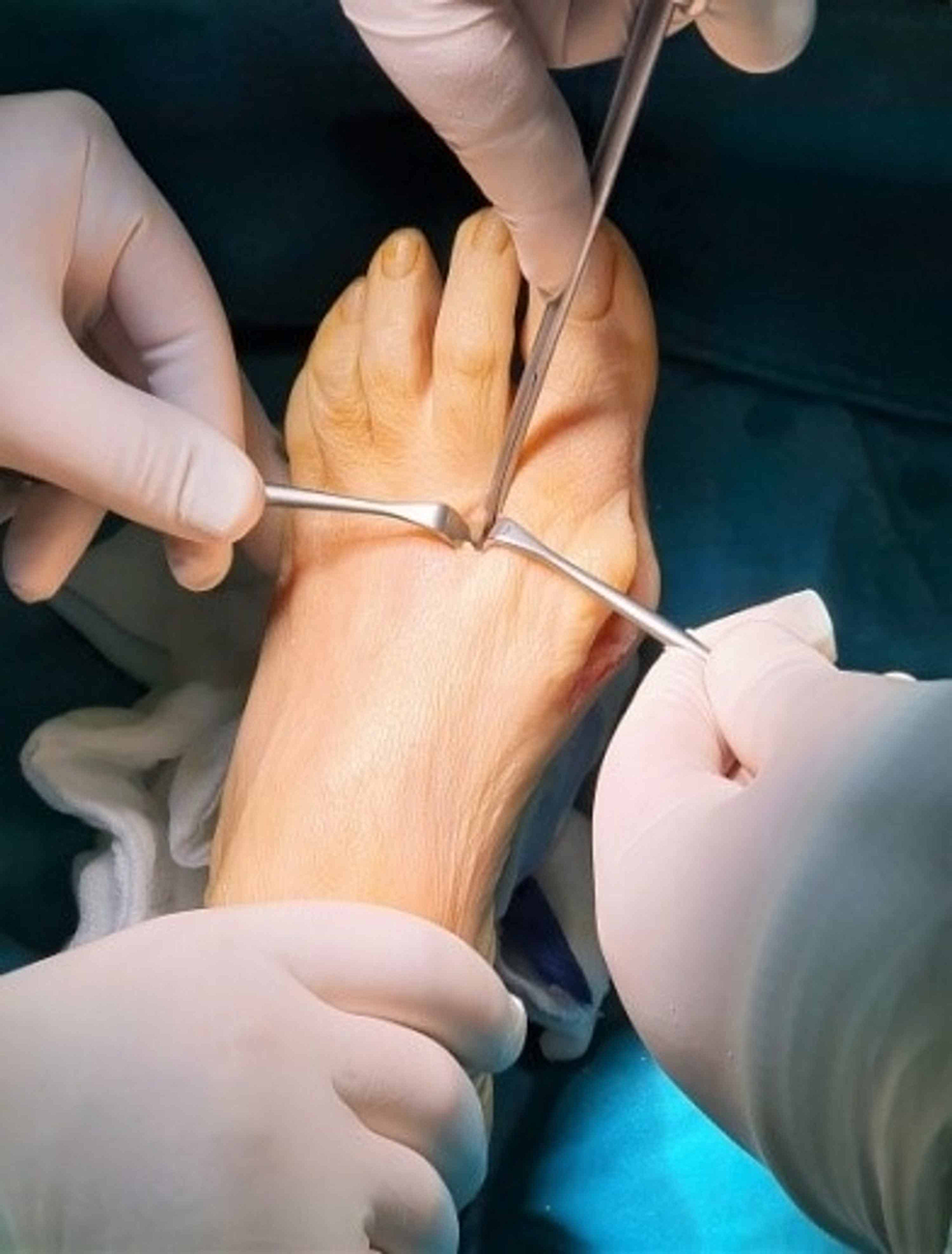 Lateral-soft-tissue-release.