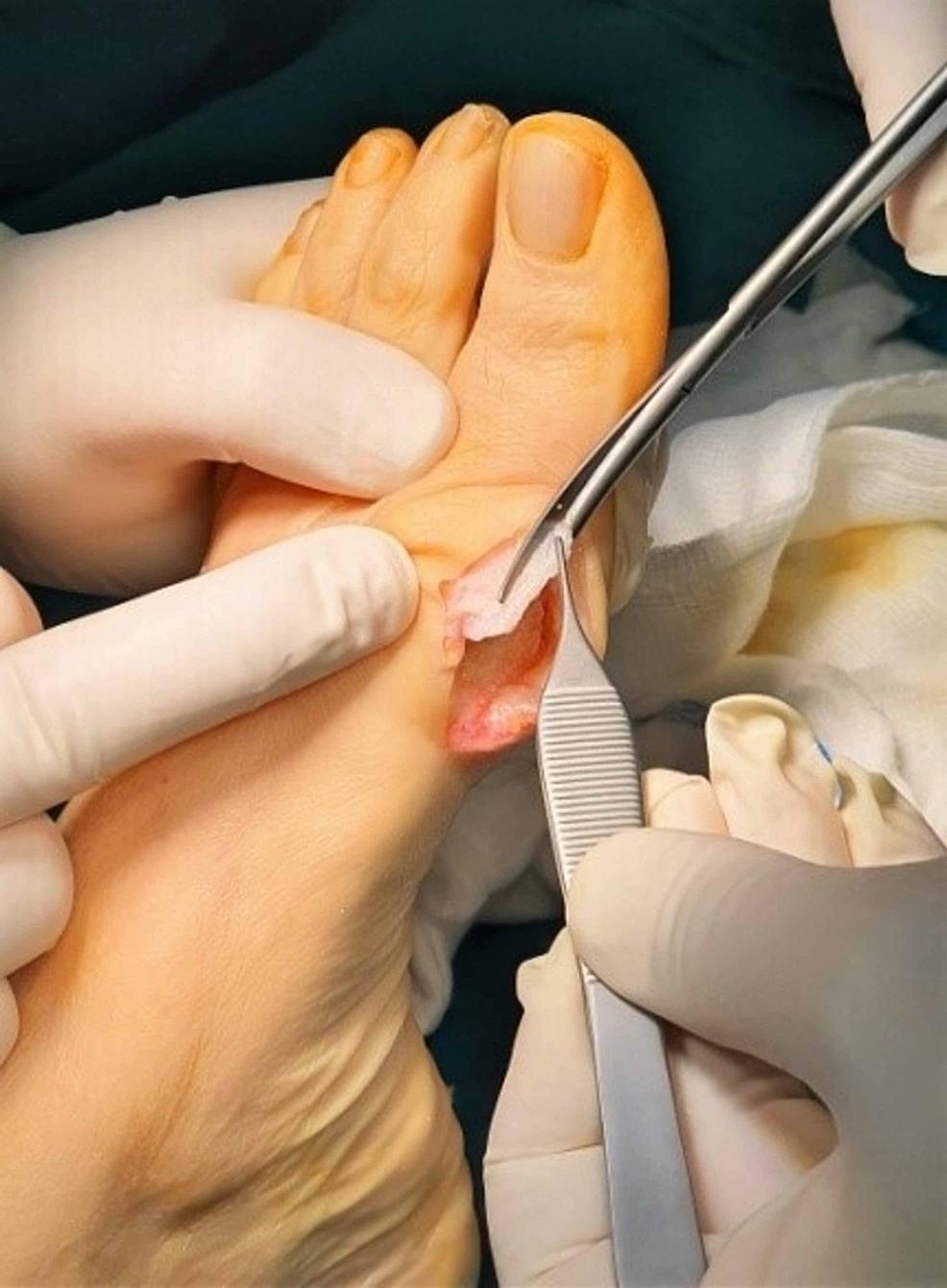 Excision-of-the-excessive-capsular-tissue.