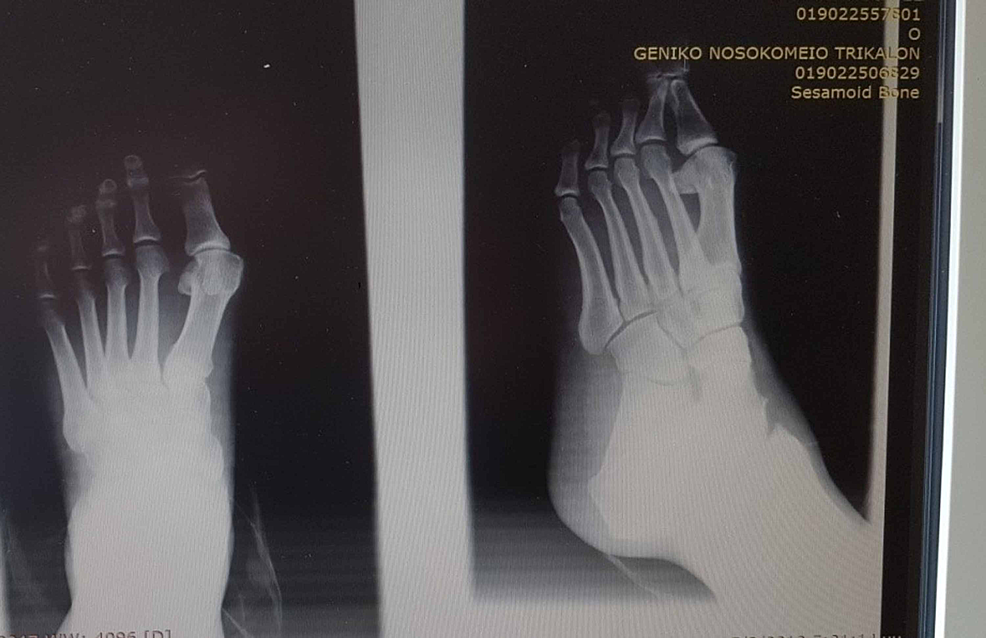 Man---47-year-old-medic-(GP)-with-moderate-deformity-preoperatively.