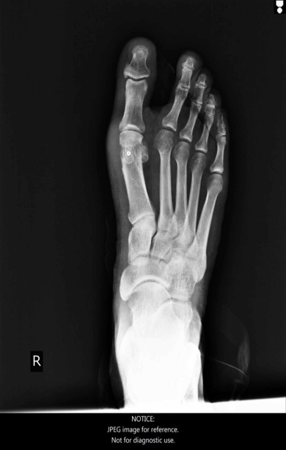 -Foot-X-ray,-anteroposterior-view,-27-months-post-operatively.