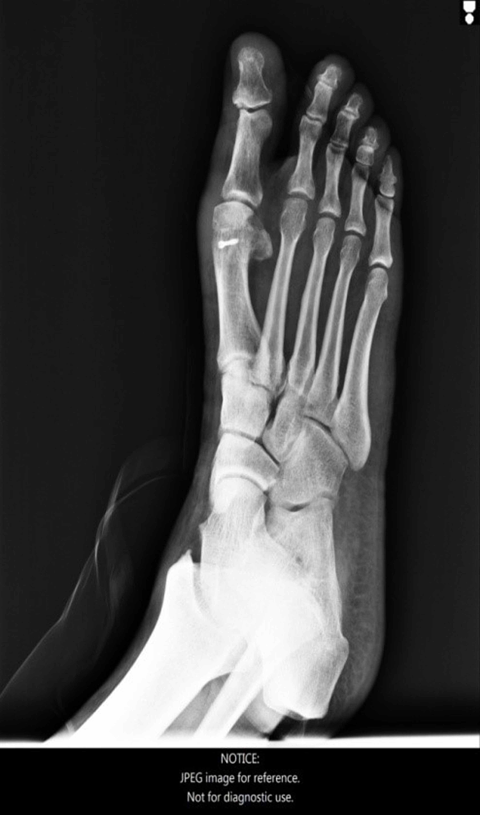 Foot-X-ray,-lateral-view,-27-months-post-operatively.
