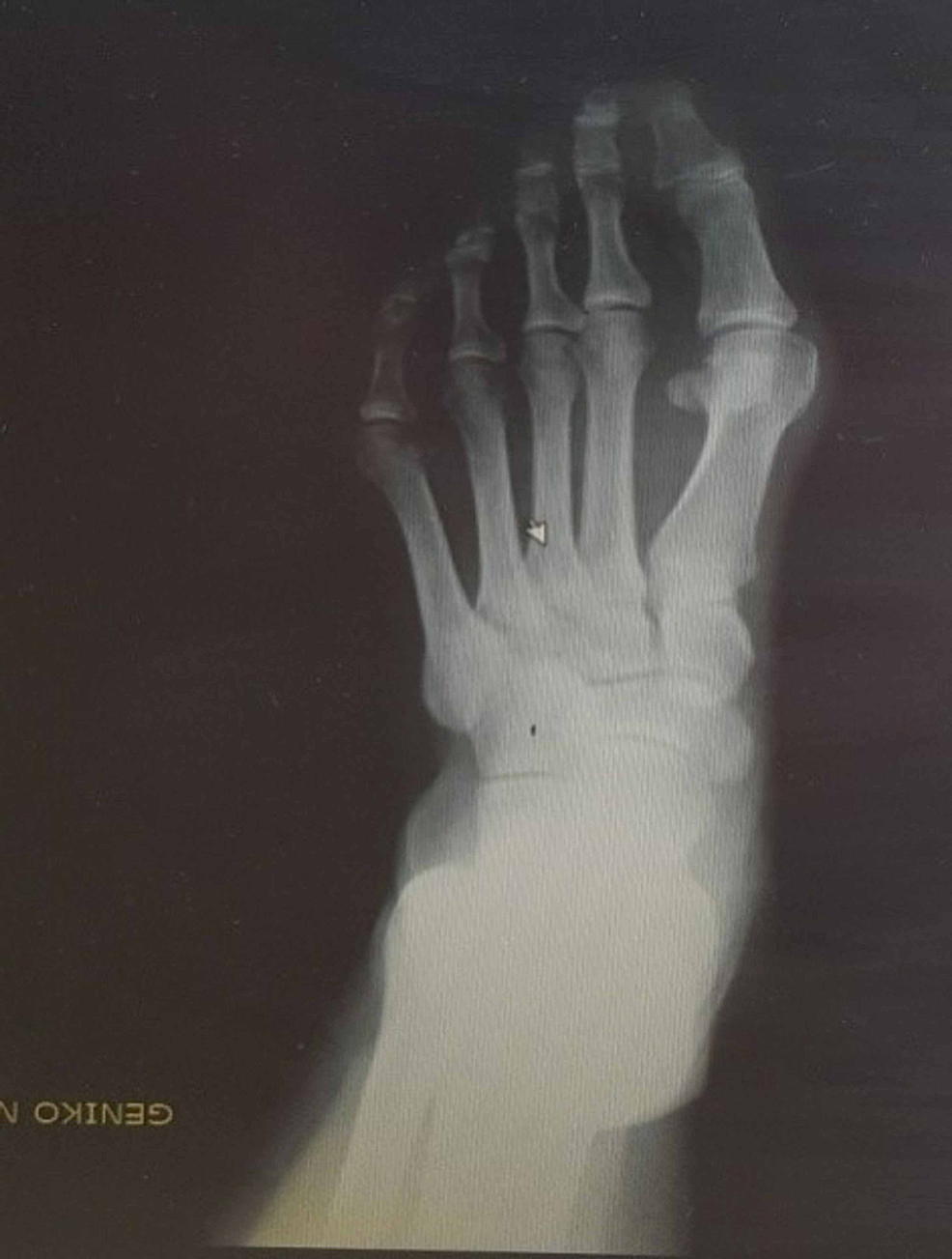 Woman---52-year-old-housewife-with-moderate-deformity-preoperatively.