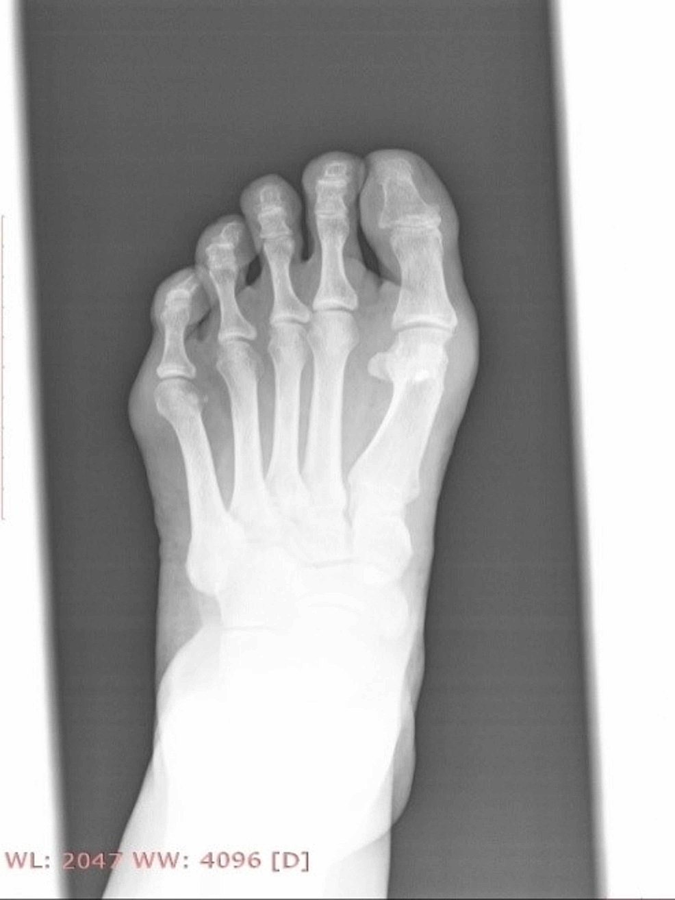 Clinical-picture-of-the-foot-after-29-months-post-operatively.