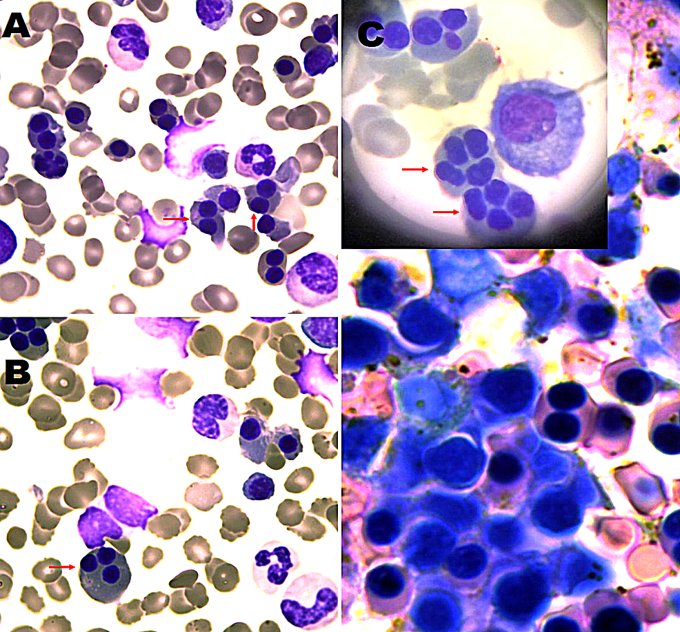 Bone-marrow-biopsy-sections-stained-with-Giemsa
