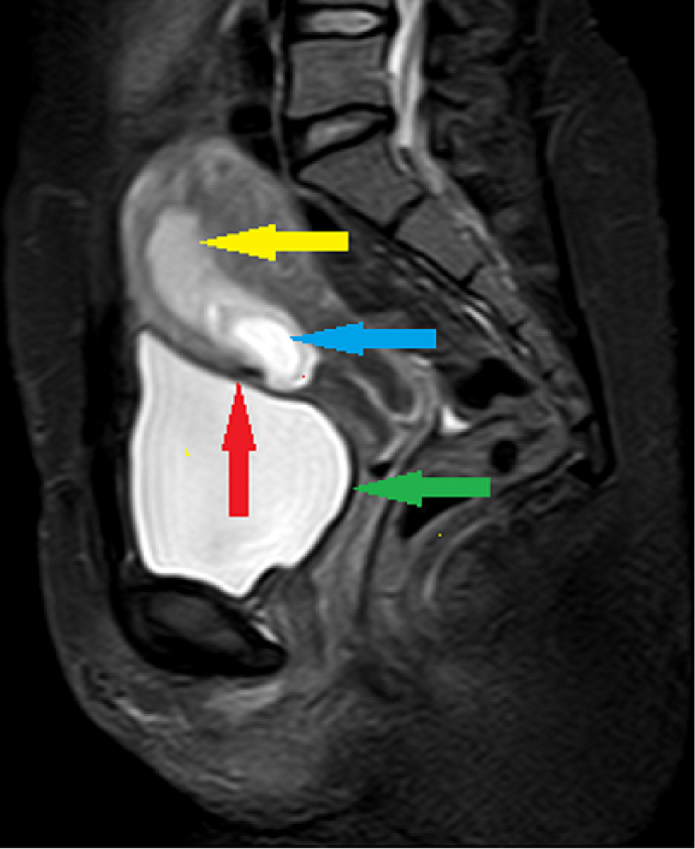 MRI-pelvis-T2W-FAT-SAT-sagittal-image-showing-empty-gestational-sac-located-in-lower-uterine-segment-partially-attached-to-the-previous-cesarean-(blue-arrow)-within-the-endometrium-(yellow-arrow).-The-myometrium-between-the-sac-and-bladder-wall-appears-very-thin-(red-arrow).-Bladder-wall-appears-intact-and-smooth-(green-arrow).