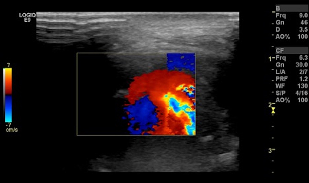 Ultrasound-image-of-the-right-parotid-region-with-Doppler-interrogation-reveals-swirling-flow-within-the-large-pseudoaneurysm-in-the-right-masticator-space.