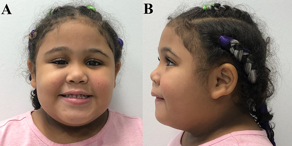 Facial-features-in-our-Puerto-Rican-CHRNA7-15q13.3-microdeletion-case.-(A):-Anterior-view-of-patient's-face-notable-for-congenital-ptosis-of-the-right-eyelid.-(B):-Lateral-view-displays-broad-nasal-bridge-and-velvety-discoloration-around-her-neck.