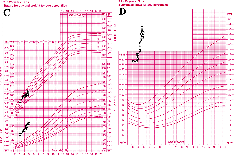 Graphical-representation-of-the-patient's-growth.-(C):-Superior-data-points-represent-the-patient's-height,-while-inferior-points-represent-her-weight.-(D):-Graph-of-same-patient's-BMI,-which-is-well-above-the-99.9th-percentile-for-age-and-sex.