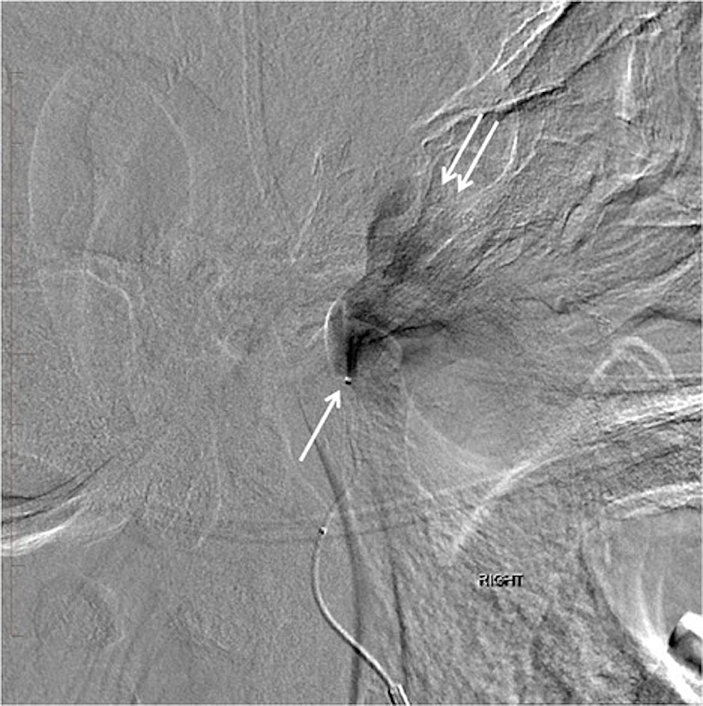 Lateral-digital-subtraction-angiography-showing-the-tip-of-the-microcatheter-in-the-mid-segment-of-the-right-middle-meningeal-artery-(arrow).-Note-the-jet-of-contrast-filling-the-large-pseudoaneurysm-just-below-the-base-of-the-skull-(double-arrows).