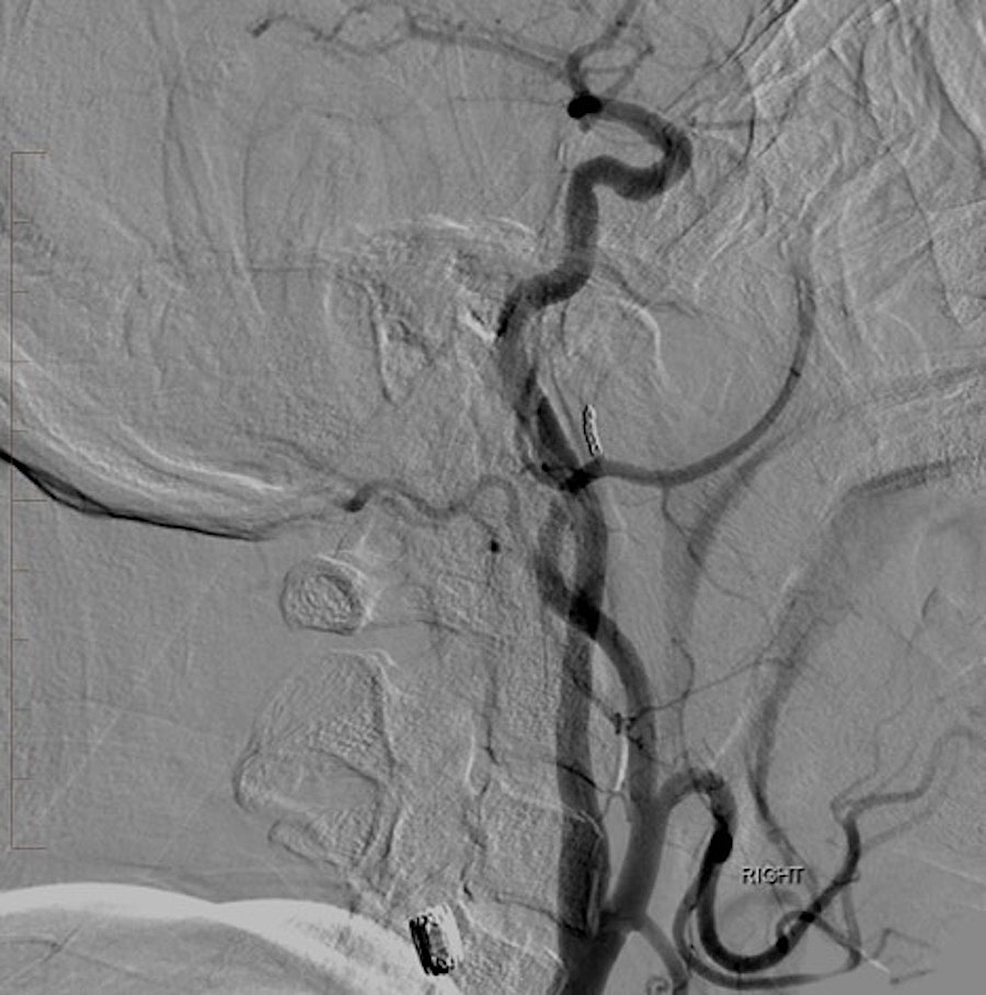 Lateral-digital-subtraction-angiography-of-the-right-common-carotid-artery-injection-reveals-complete-occlusion-of-the-pseudoaneurysm.-The-previously-noted-jet-of-contrast-and-large-area-of-opacification-are-no-longer-visualized.