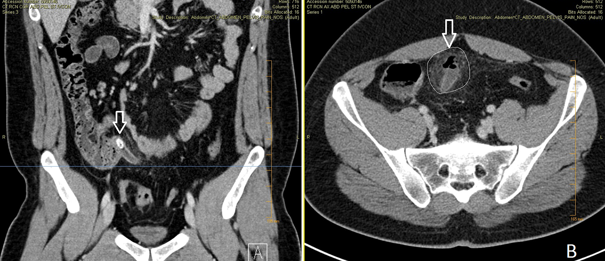 Adult appendicitis in