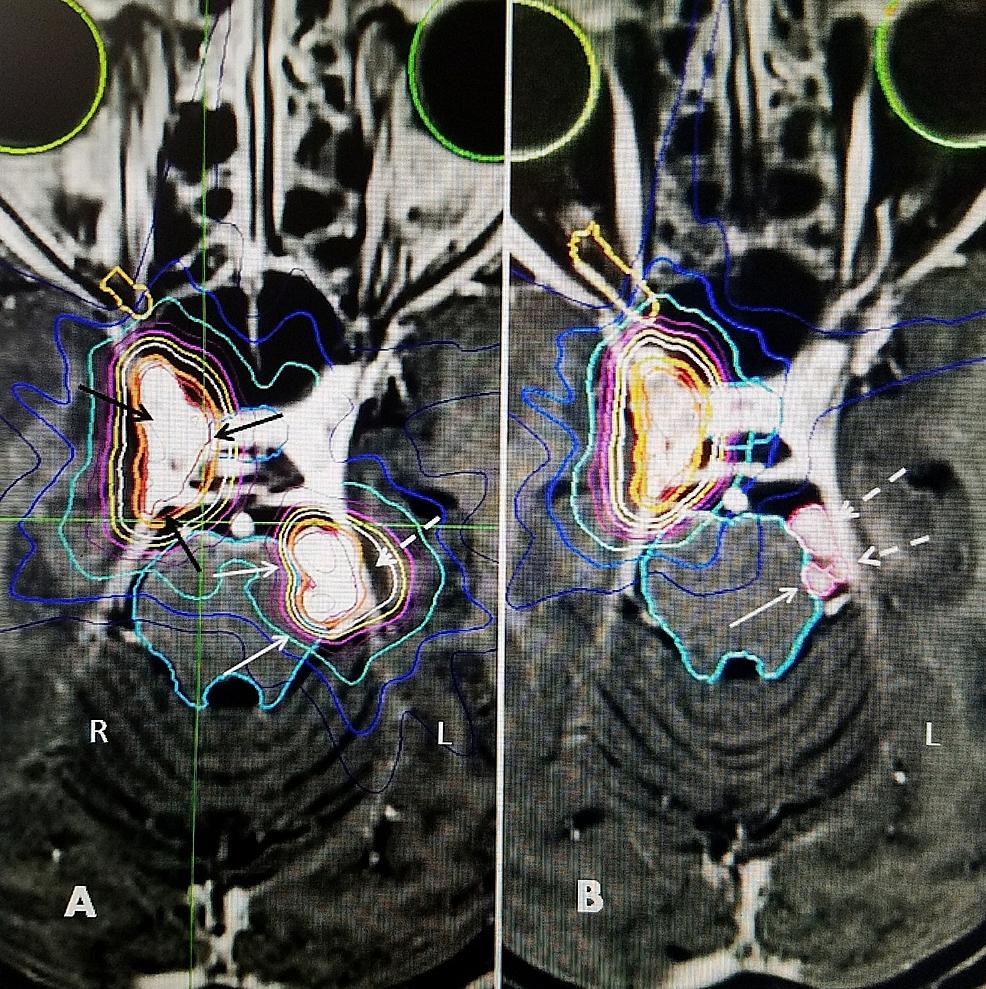 Original-radiosurgical-plan-showing-right-cavernous-sinus-and-left-tentorial-meningiomas.