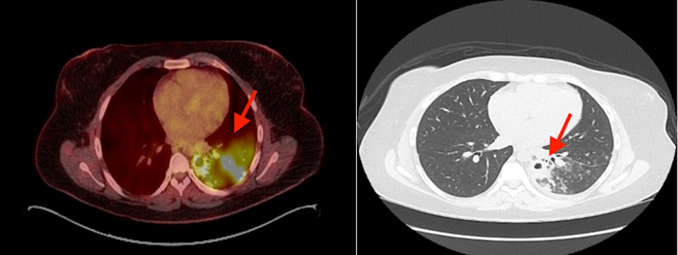 Chest-positron-emission-tomography–computed-tomography-(PET-CT)-showing-significant-pulmonary-infiltrate-with-cavitary-lesions.