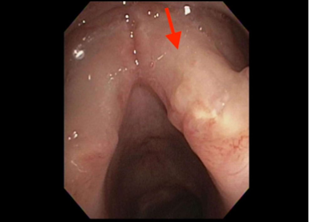 Laryngoscopy-showing-vocal-cords-with-an-infiltrative-nodular-process.