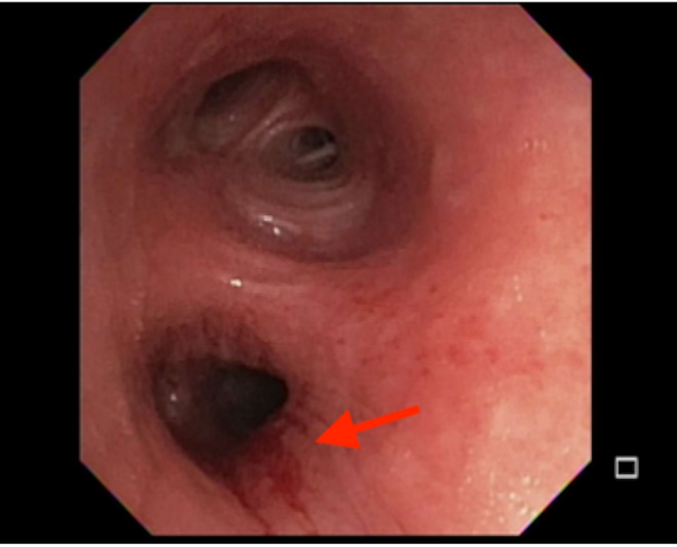 Bronchoscopy-showing-submucosal-nodular-infiltration-of-the-left-main-and-lower-lobe-bronchus.