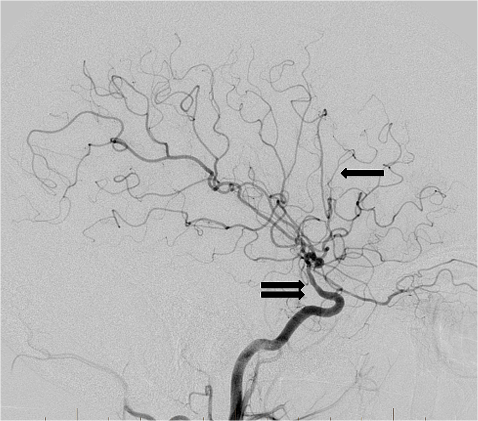 Follow-up-cerebral-angiogram-lateral-projection-from-a-right-internal-carotid-artery-injection-three-months-after-the-traumatic-event-reveals-persistent-abnormal-narrowing-of-the-supraclinoid-internal-carotid-artery-(double-arrow).-The-previously-occluded-distal-right-middle-cerebral-artery-branches-have-recanalized-(single-arrow).-Importantly,-no-pseudoaneurysm-development-has-occurred.