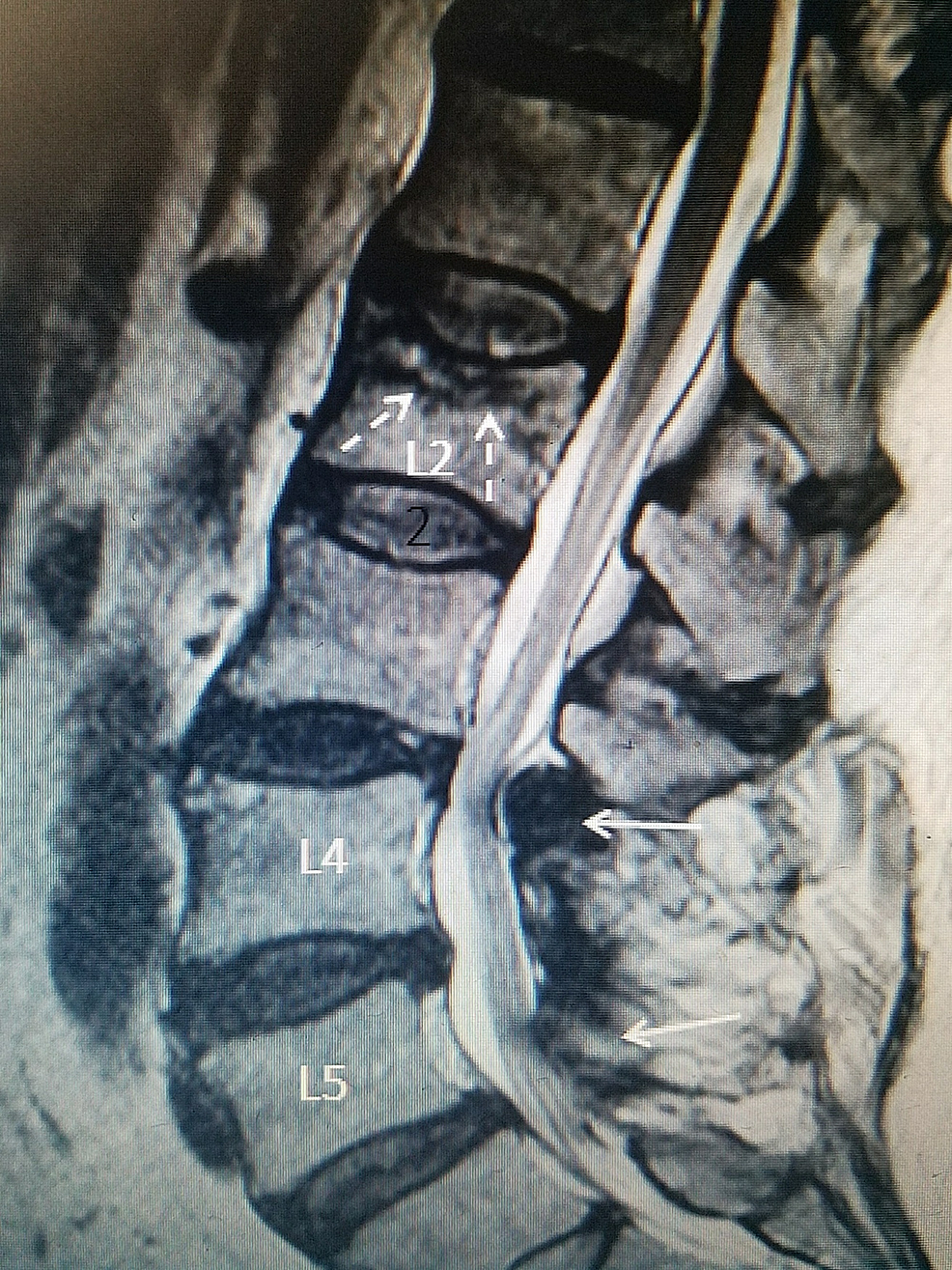 L2-fracture-15-years-after-lumbar-fusion-above-post-fusion-stenosis-after-previous-L4-to-S1-fusion