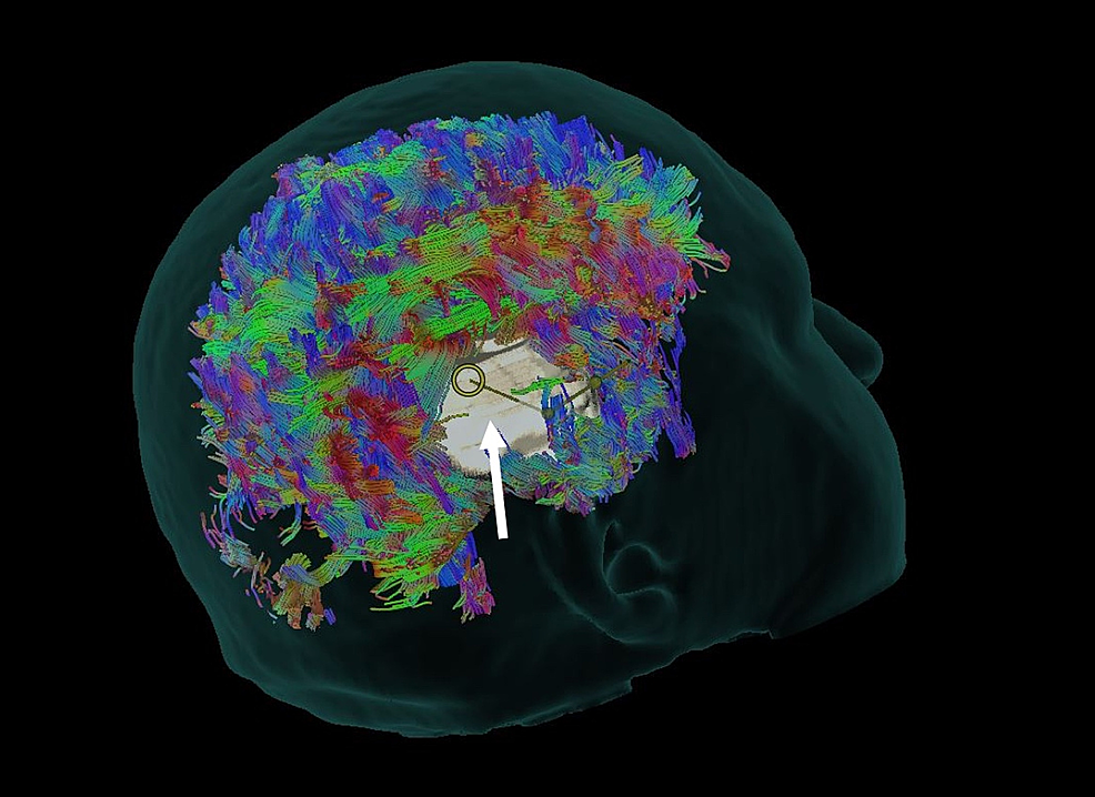 Whole-Brain-Tractography-
