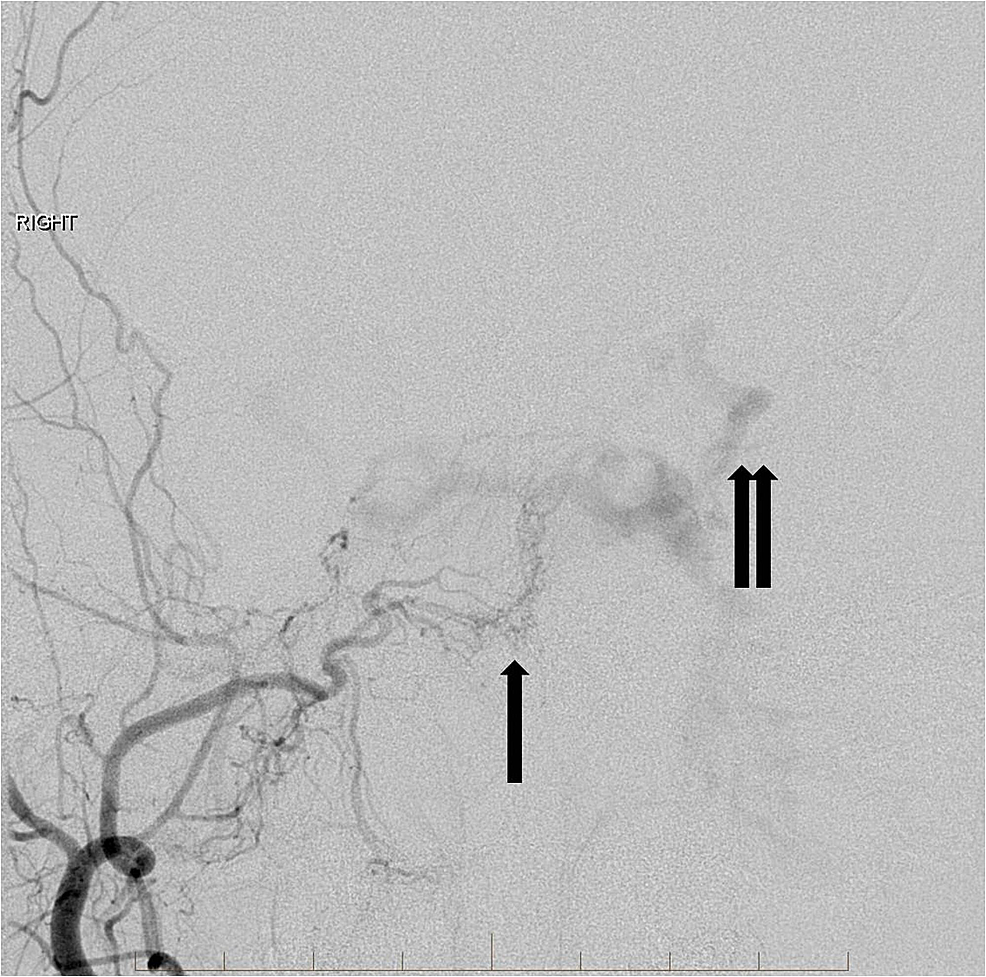 Right-external-carotid-artery-angiogram-demonstrates-multiple-small-feeding-arteries-to-supply-the-indirect-carotid-cavernous-fistula-(single-arrow).-There-is-arterialization-of-the-bilateral-cavernous-sinuses,-circular-sinus,-and-the-left-superior-ophthalmic-vein-(double-arrows).