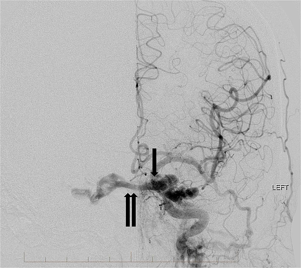 Frontal-view-from-a-left-common-carotid-artery-angiogram-demonstrates-multiple-arterial-feeders-from-the-left-internal-carotid-artery-and-external-carotid-artery-to-the-high-flow-indirect-carotid-cavernous-fistula-(single-arrow).-There-is-arterialization-of-the-bilateral-cavernous-sinuses,-circular-sinus,-and-left-superior-ophthalmic-vein-(double-arrows).