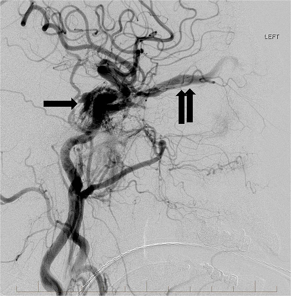 Lateral-view-from-a-left-common-carotid-artery-angiogram-showing-the-high-flow-carotid-cavernous-fistula-involving-the-cavernous-sinus-(single-arrow)-and-left-superior-ophthalmic-vein-(double-arrows).