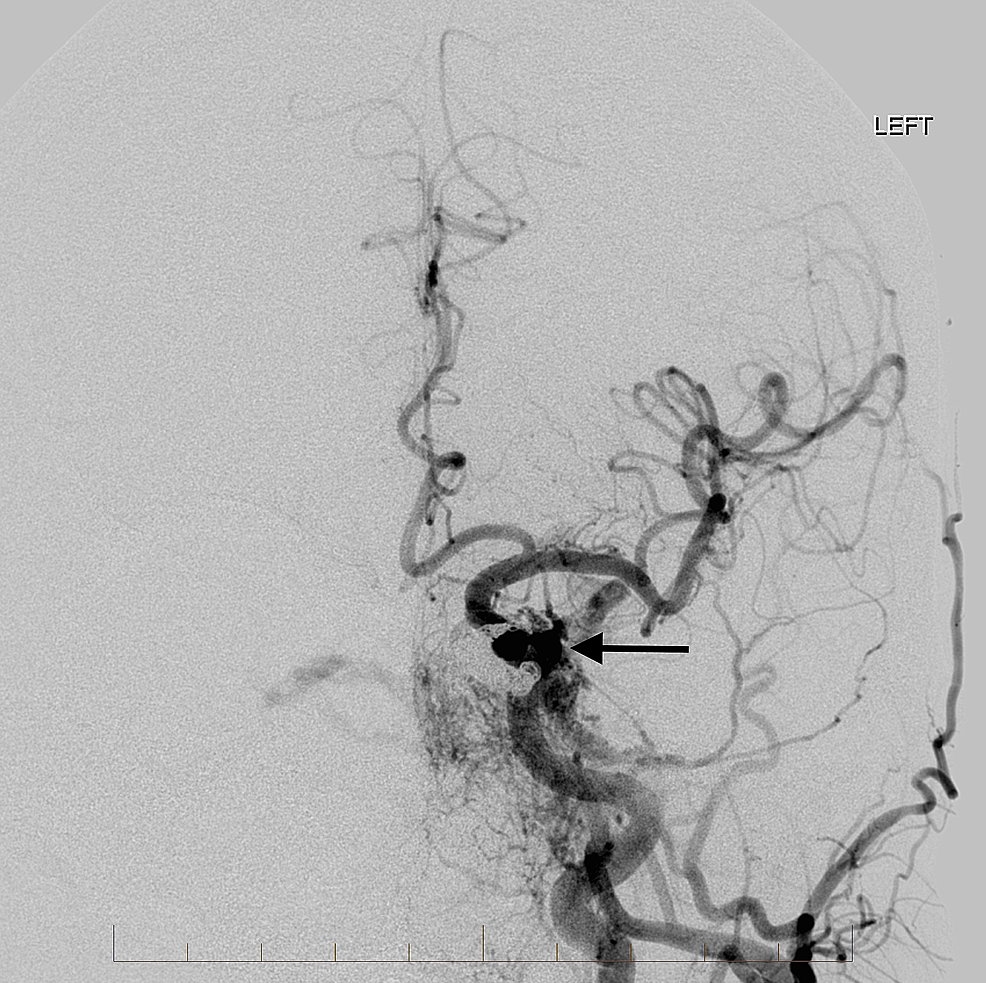 Left-common-carotid-artery-angiogram-after-the-initial-transvenous-embolization-reveals-a-dense-coil-pack-in-the-medial-aspect-of-the-left-cavernous-sinus-with-reduced-flow-across-the-circular-sinus.-There-is-still-a-prominent-arterialized-venous-pouch-laterally-(arrow)-and-arterialization-of-the-left-superior-ophthalmic-vein.