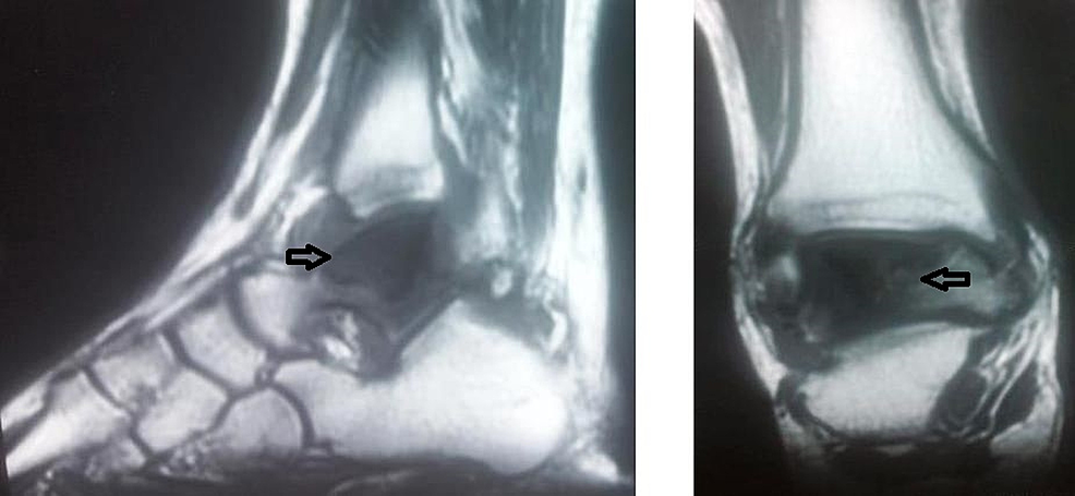 Magnetic-resonance-imaging-(MRI)-of-the-right-ankle.